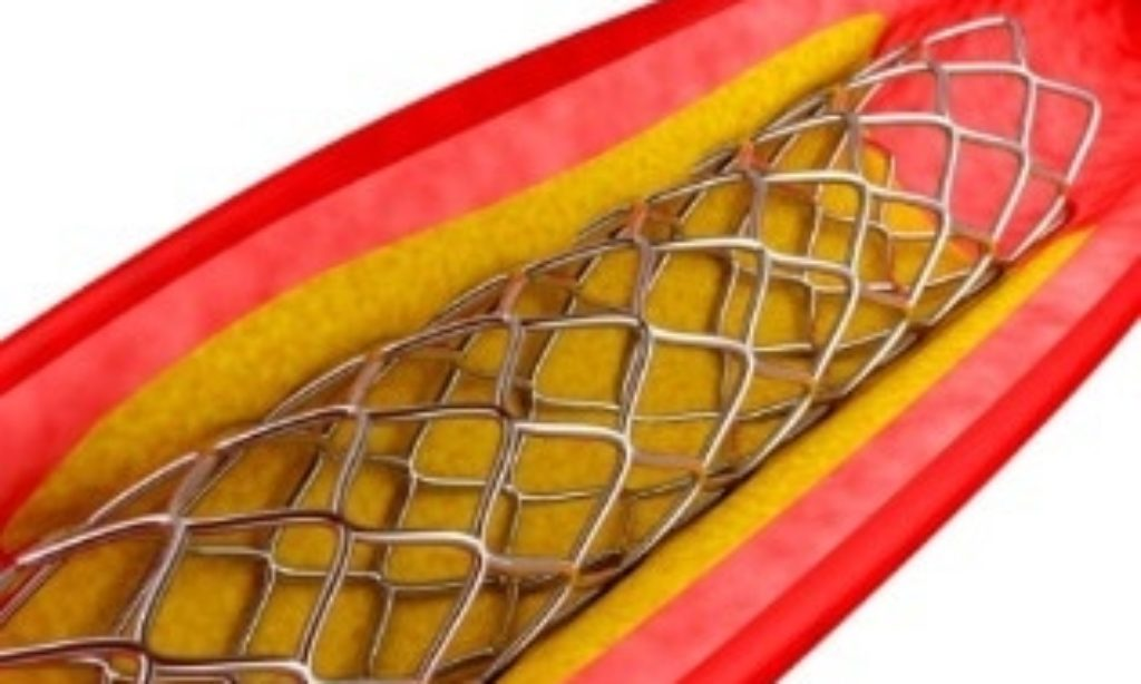 Heat Treatment to Strengthen Stents